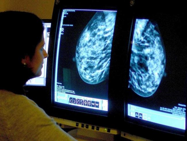 A breast cancer scan